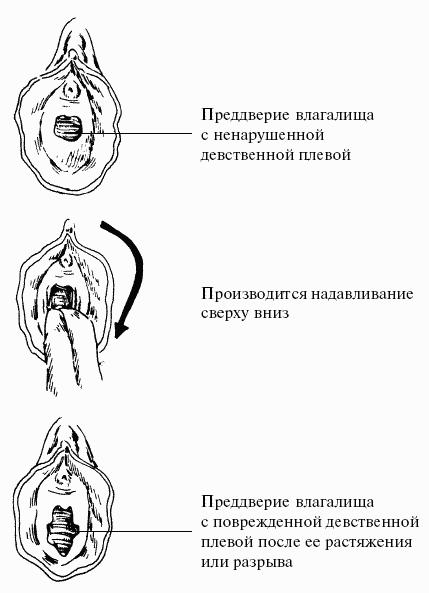 foto-zhenshin-posle-pervogo-polovogo-akta-pokazat-ih-vagini