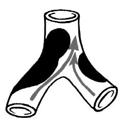 Отеки ног при варикозе эффективное лечение
