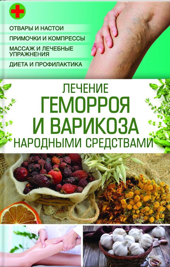 Медицинское лечение варикоза