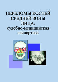 Гришенкова, Л. Н.  - Переломы костей средней зоны лица: судебно-медицинская экспертиза