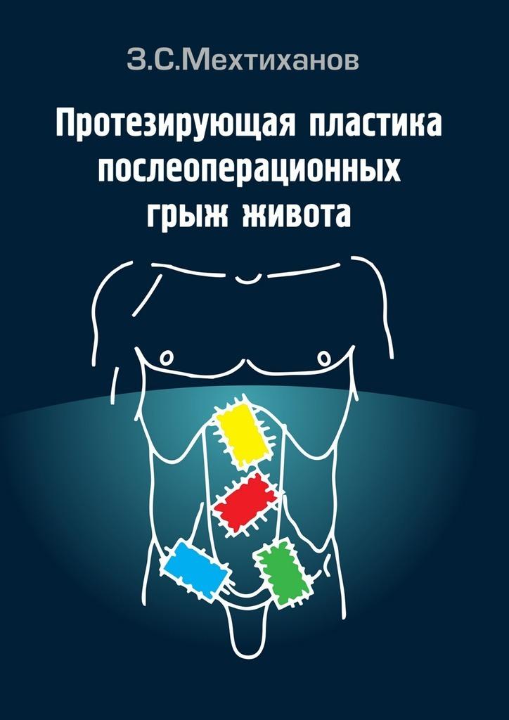 Зубаир Мехтиханов - Протезирующая пластика послеоперационныхгрыж живота