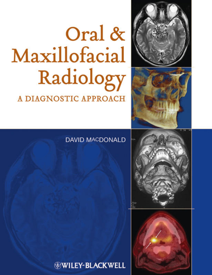 David Macdonald Oral and Maxillofacial Radiology. A Diagnostic Approach giant cell lesions of the jaws