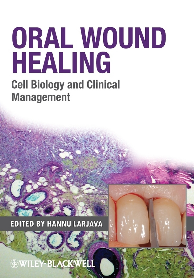 Hannu Larjava Oral Wound Healing. Cell Biology and Clinical Management clinical
