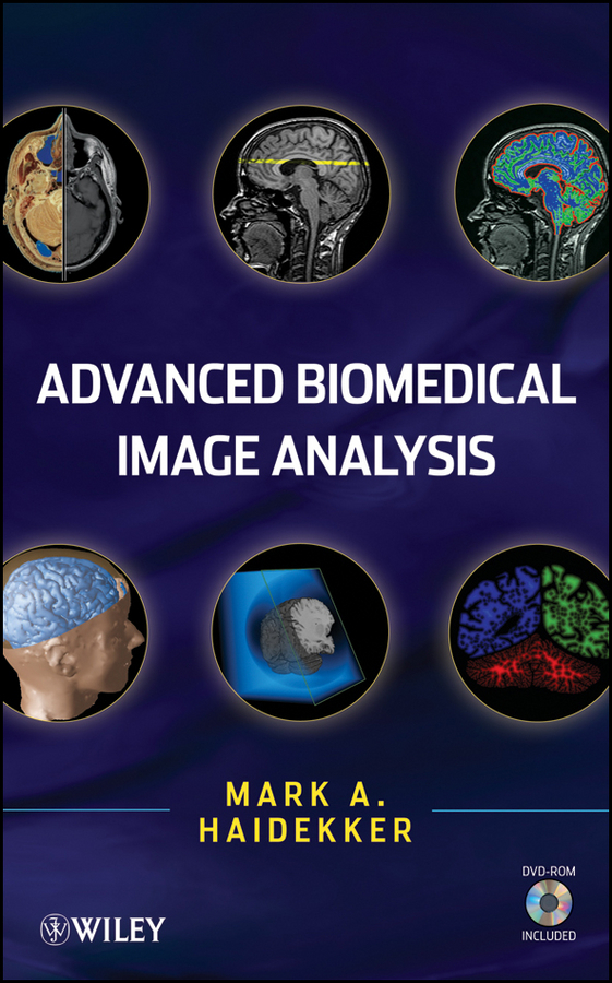 Mark  Haidekker Advanced Biomedical Image Analysis automatic image segmentation of hela cells