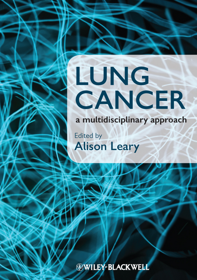 Alison Leary Lung Cancer. A Multidisciplinary Approach the cancer whisperer
