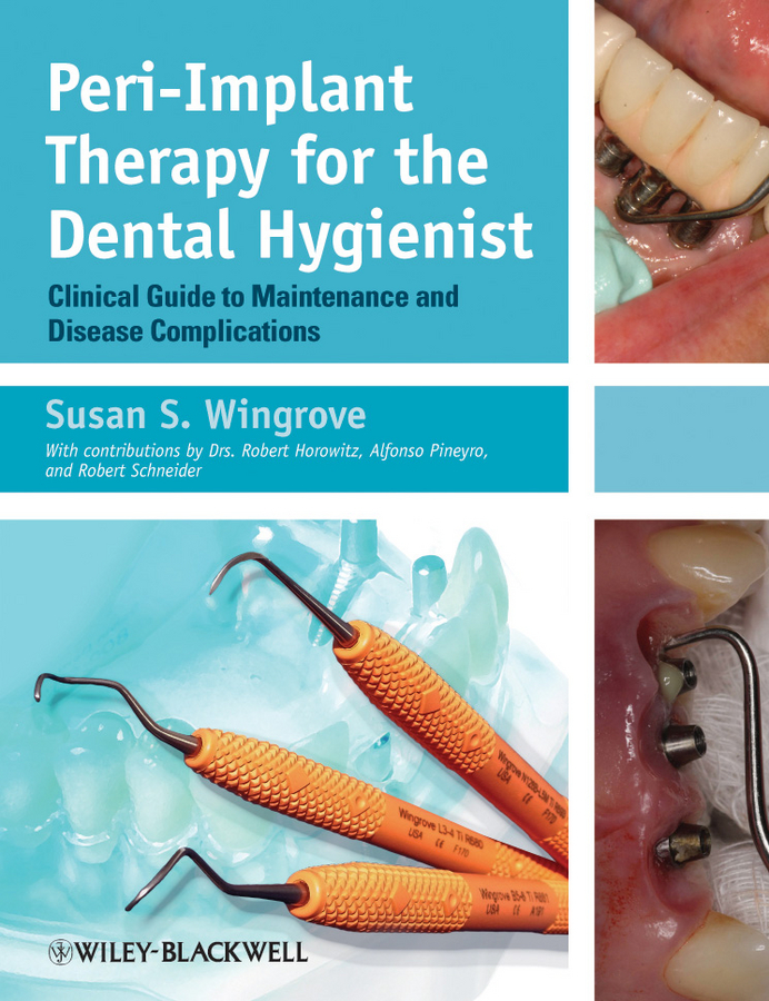 Susan Wingrove S. Peri-Implant Therapy for the Dental Hygienist. Clinical Guide to Maintenance and Disease Complications ISBN: 9781118646861 denshine 2017 new arrival dental demonstration teeth model implant analysis crown bridge
