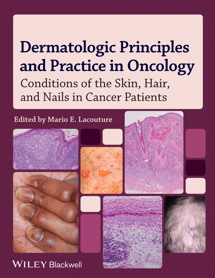 Mario Lacouture E. Dermatologic Principles and Practice in Oncology. Conditions of the Skin, Hair, and Nails in Cancer Patients cancer prevention and control