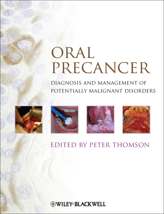 Peter Thomson Oral Precancer. Diagnosis and Management of Potentially Malignant Disorders peter lockhart b oral medicine and medically complex patients
