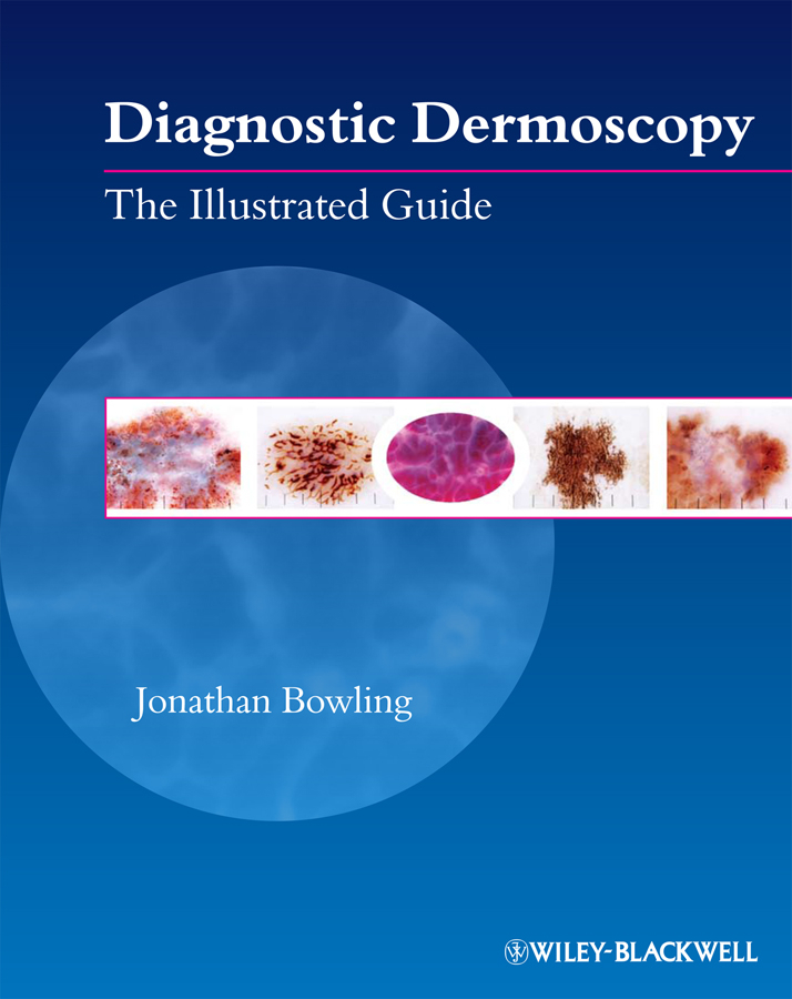 Jonathan Bowling Diagnostic Dermoscopy. The Illustrated Guide ISBN: 9781444329841 50pairs lot emergency supplies ecg defibrillation electrode patch prompt aed trainer accessories not for clinical use