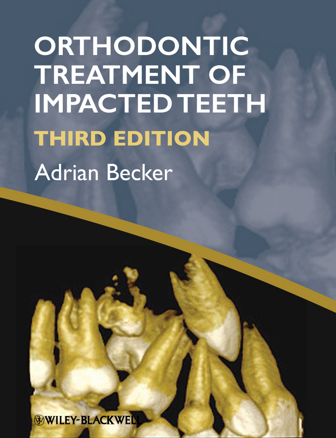 Adrian  Becker Orthodontic Treatment of Impacted Teeth the failure of economic nationalism in slovenia s transition
