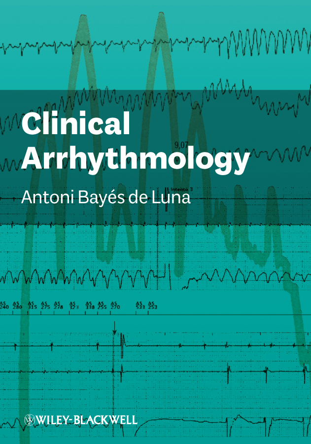 Antoni Bayés de Luna Clinical Arrhythmology moore bret a handbook of clinical psychopharmacology for psychologists isbn 9781118221235