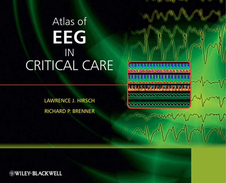 Brenner Richard Atlas of EEG in Critical Care ISBN: 9780470746691 the atlas