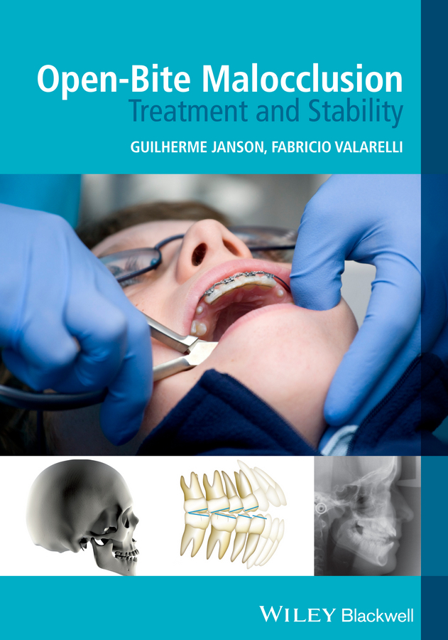 Valarelli Fabricio Open-Bite Malocclusion. Treatment and Stability valarelli fabricio open bite malocclusion treatment and stability