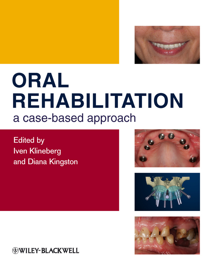 Klineberg Iven Oral Rehabilitation. A Case-Based Approach ISBN: 9781444361100 racism in translation a cda approach