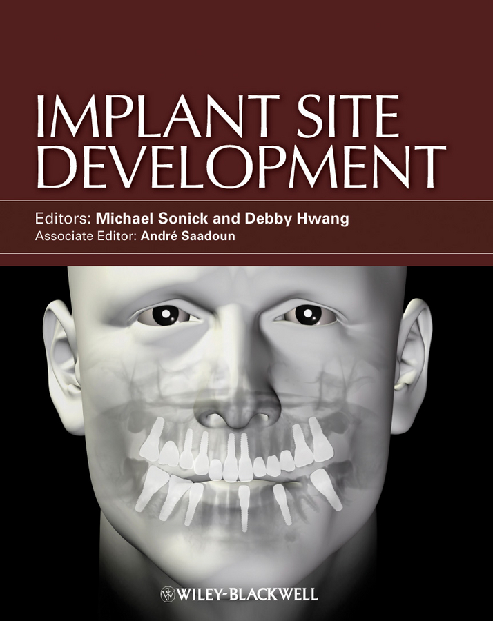 Sonick Michael Implant Site Development ISBN: 9780470963180 denshine 2017 new arrival dental demonstration teeth model implant analysis crown bridge