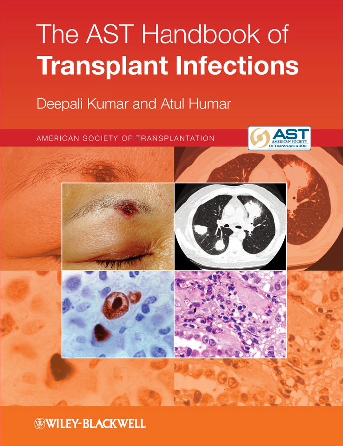 Humar Atul The AST Handbook of Transplant Infections prevalence and predictors of hiv 1 infection among couples in tanzania