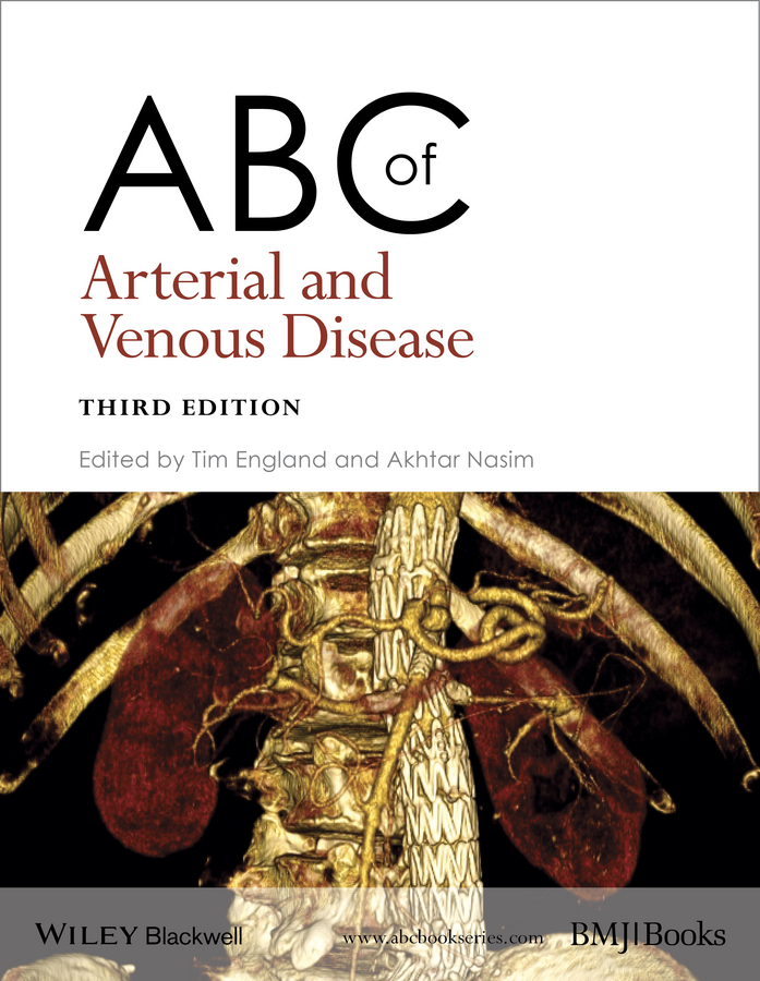 Nasim Akhtar ABC of Arterial and Venous Disease nasim akhtar abc of arterial and venous disease