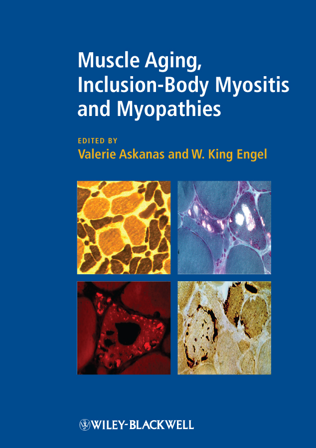 Engel W. King Muscle Aging, Inclusion-Body Myositis and Myopathies synthesis of allicin its derivatives and inclusion complexes