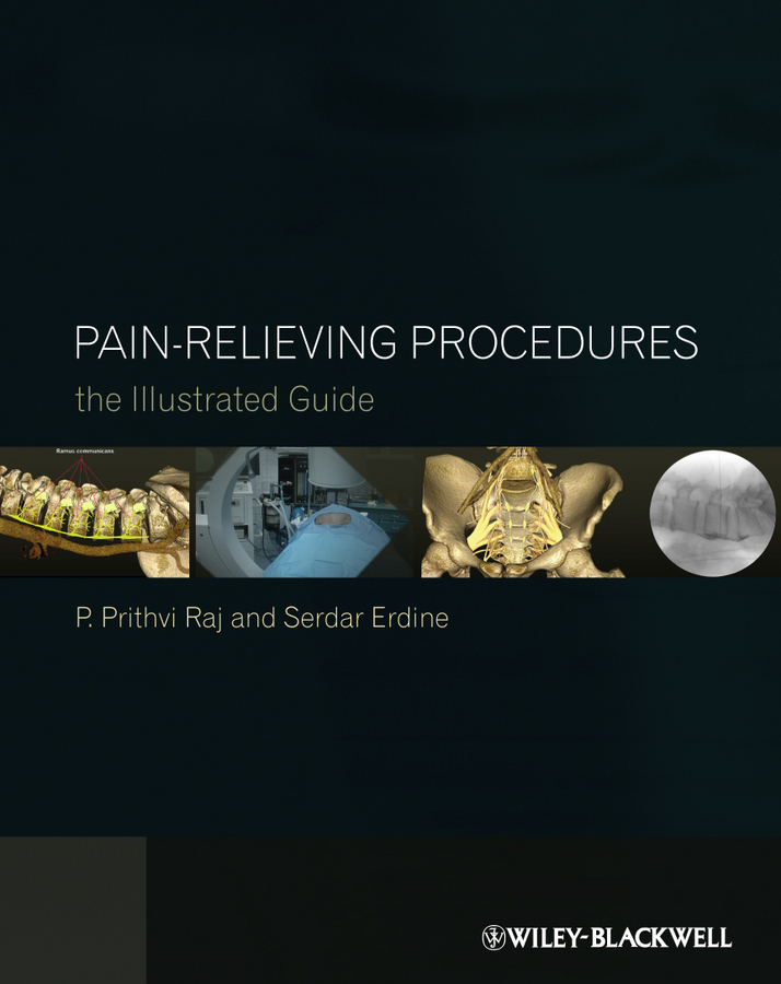 Erdine Serdar Pain-Relieving Procedures. The Illustrated Guide