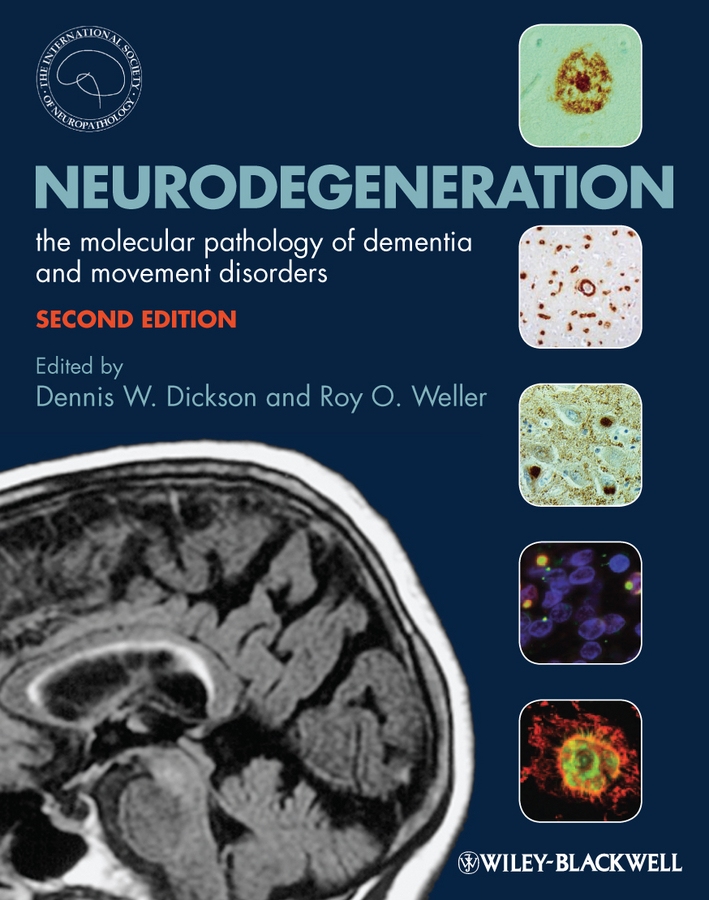 Weller Roy O. Neurodegeneration. The Molecular Pathology of Dementia and Movement Disorders diagnostic aids in potentially malignant disorders and malignancies