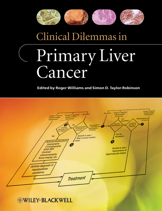 Williams Roger Clinical Dilemmas in Primary Liver Cancer cervical cancer in amhara region in ethiopia