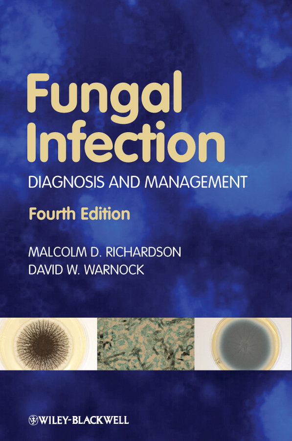 Warnock David W. Fungal Infection. Diagnosis and Management ISBN: 9781444360998 isolation of polypropylene degrading fungal isolates