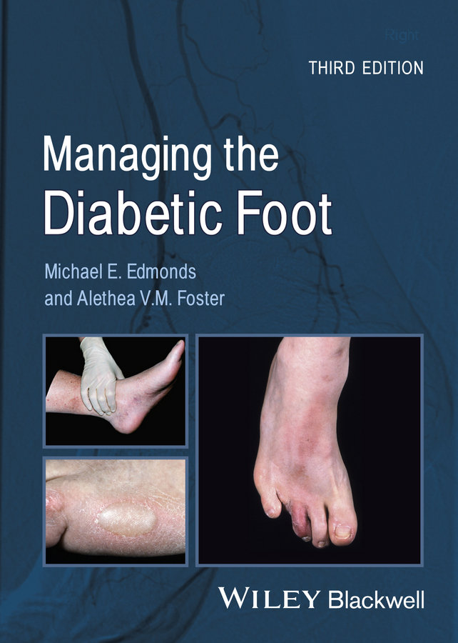 Foster Alethea V.M. Managing the Diabetic Foot the johns hopkins hospital 1998 1999 guide to medical care of patients with hiv infection