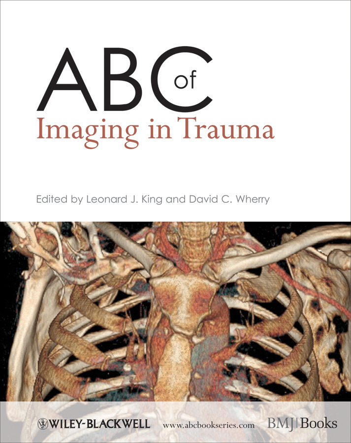 Wherry David C. ABC of Imaging in Trauma andrei alexandrov v neurovascular examination the rapid evaluation of stroke patients using ultrasound waveform interpretation