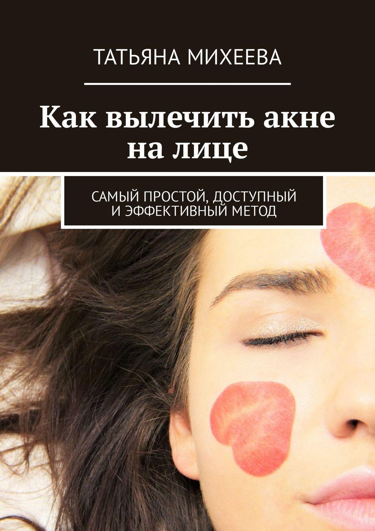 Татьяна Михеева - Как вылечить акне на лице. Самый простой, доступный иэффективный метод