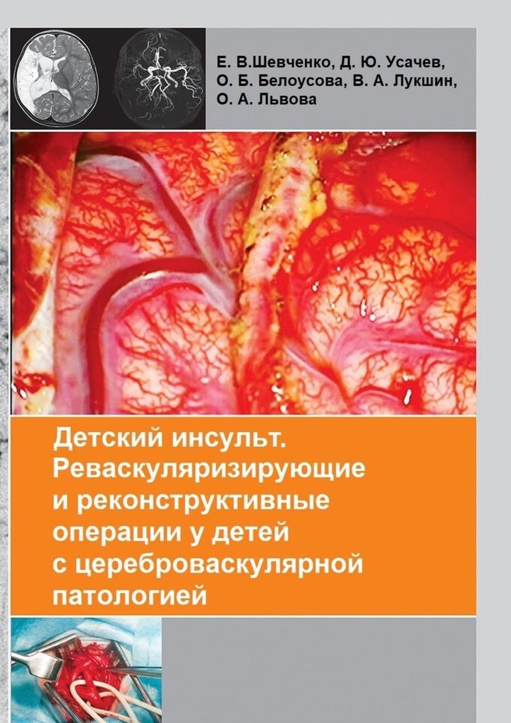Коллектив авторов - Детский инсульт. Реваскуляризирующие иреконструктивные операцииудетей сцереброваскулярной патологией